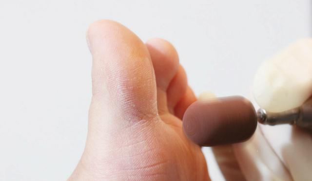 toe-aftermath
